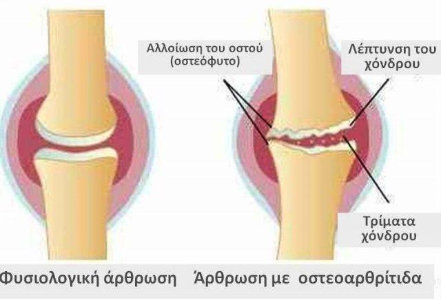 Οστεοαρθρίτιδα-e1492082108990.jpg